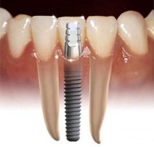 Dental Implant Internal Illustration