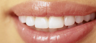 Teeth Whitening - Close Up