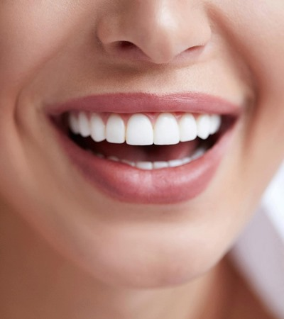 Healthy Teeth Matter - Surbiton Dental
