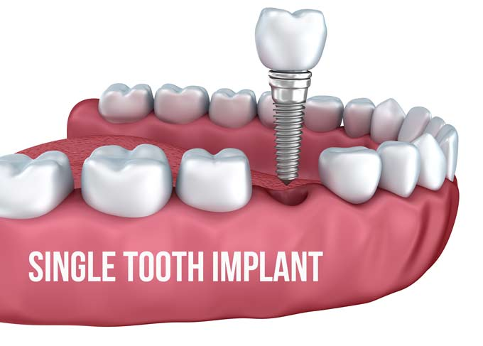 Single tooth implant in Surbiton