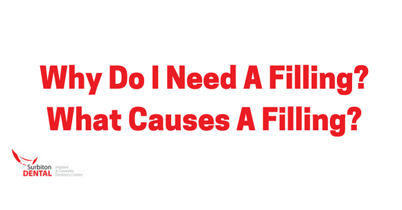 Why Do I Need A Filling? What Causes A Filling?   Surbiton Dental