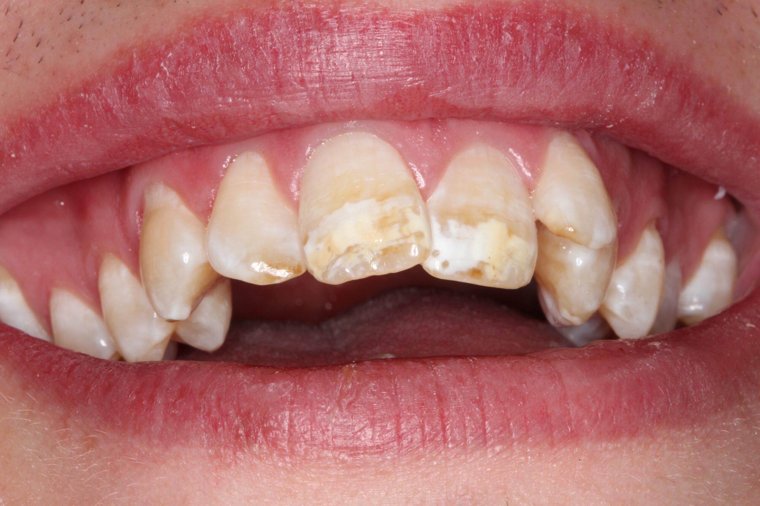 Case 9 (Before) treating at Surbiton Dental
