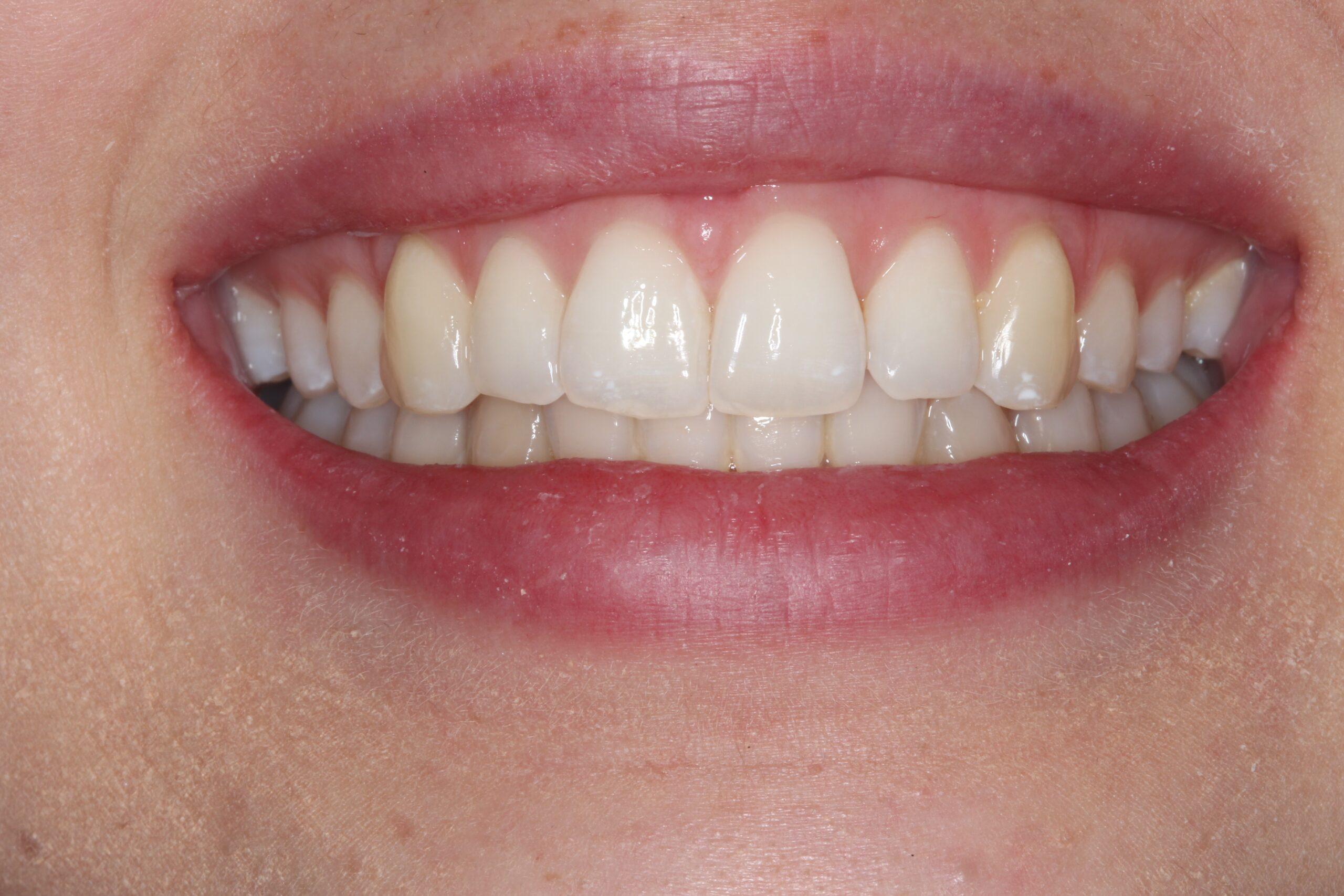 Case 6 (After) treating at Surbiton Dental
