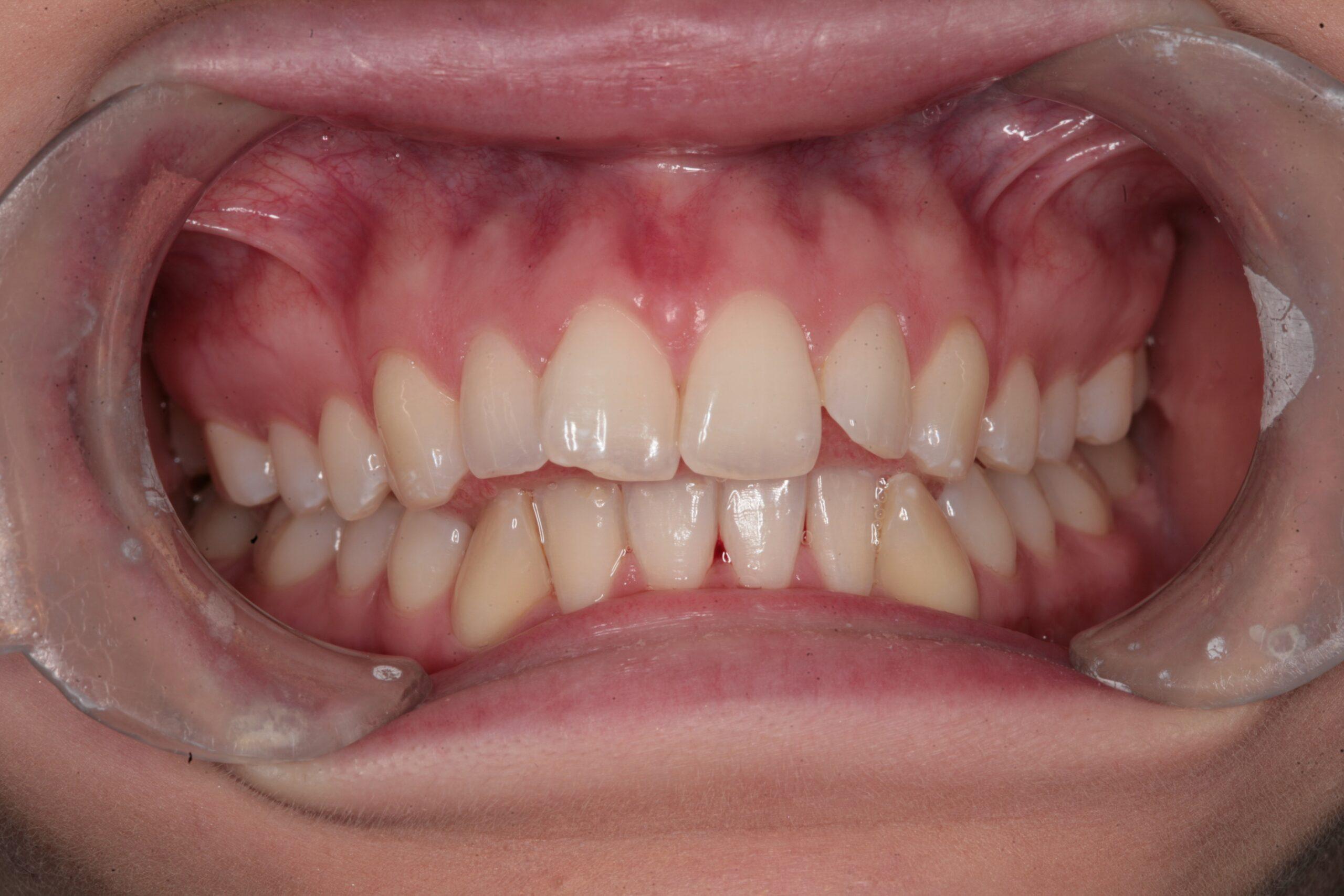 Case 6 (Before) treating at Surbiton Dental