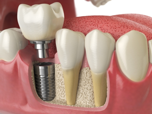 Dental Implants at Surbiton Dental