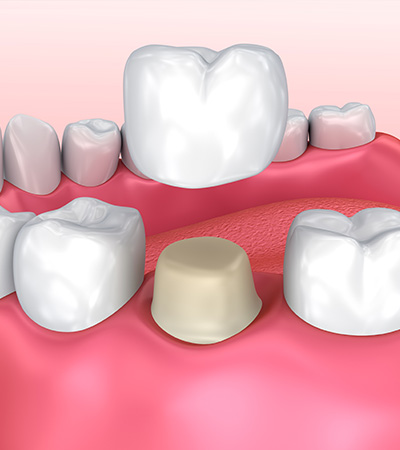 Dental crowns in Surbiton