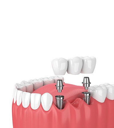 Dental Bridges at Surbiton Dental