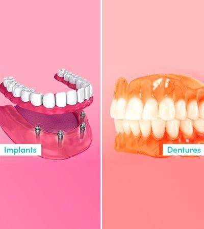 Dental Implant Vs Dentures